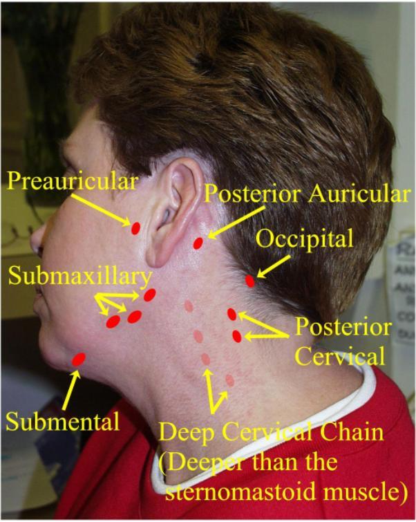 swollen glands Deep sore throat