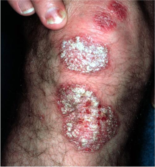 Treatment of psoriasis asd 2