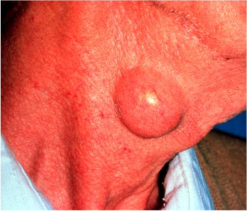 Epidermal Inclusion Cysts  Sebaceous Cysts