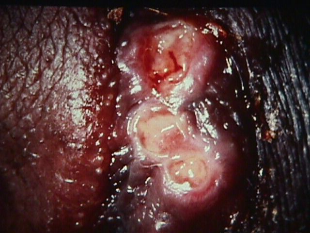 Chancroid Facts, Pictures and Photos | STDs In Color