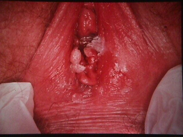images of vaginal warts #11