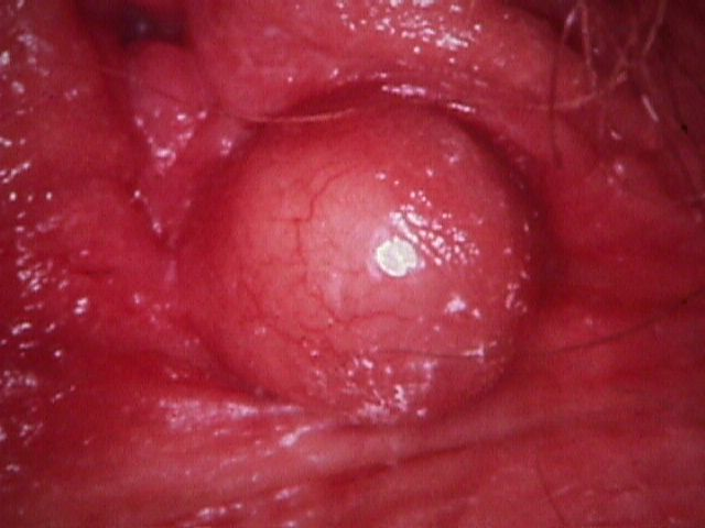 vaginal cysts pictures